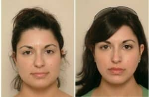 Rhinoplasty london before and after
