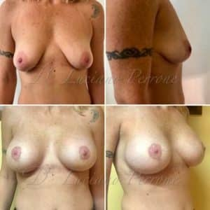 breast augmentation + uplift harley street