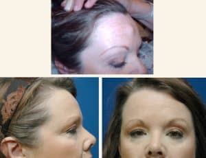 forehead osteoma removal London