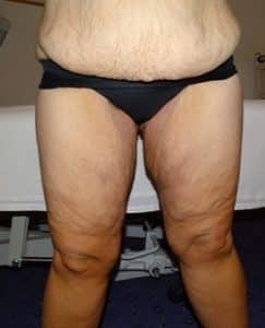 thigh lift london before