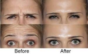 Anti Wrinkle Injections London before and after