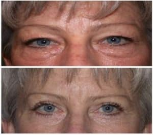 upper blepharoplasty london