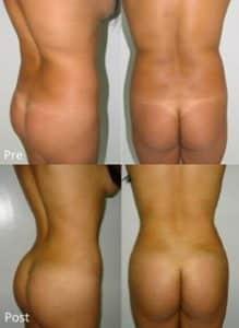 360 liposuction BBL