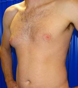 gynecomastia london before