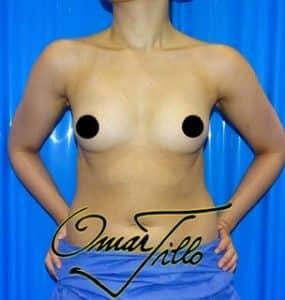 Breast enlargement London