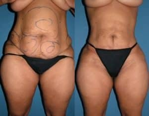 Abdomen liposuction before and after