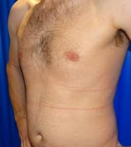 gynecomastia london after