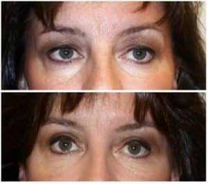 blepharoplasty london