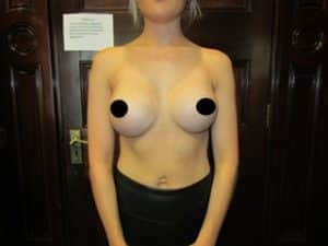 Breast implant surgery after