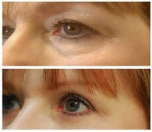 cosmetic eyelid surgery london