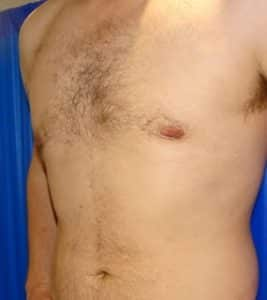male chest reduction after