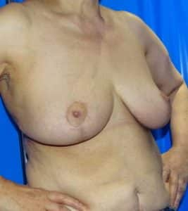 breast reduction london after