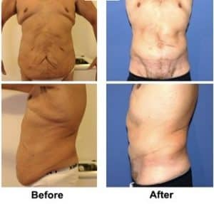 Complex male abdominoplasty