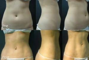 liposuction abdomen flanks