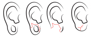 tribal earlobe repair