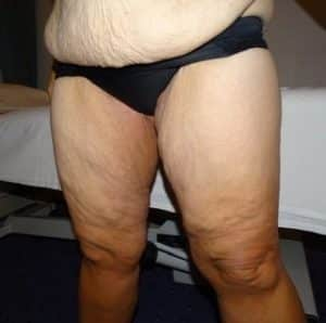 thigh lift surgery london before