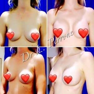 breast implants harley street