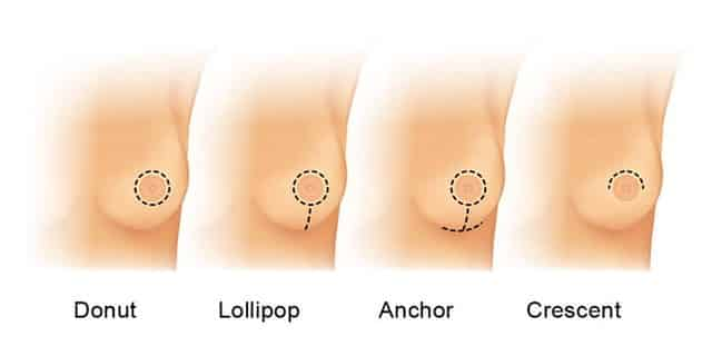types of breast lift