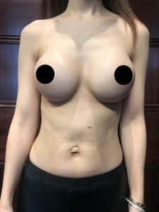 breast augmentation round implants after