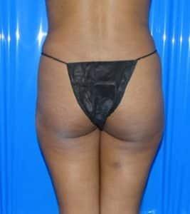 brazilian butt ift results