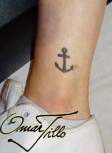 surgical tattoo removal london