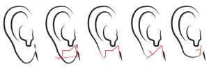 stretched earlobe repair