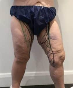thighplasty before