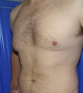 male chest reduction before