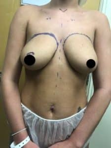 breast augmentation and uplift before
