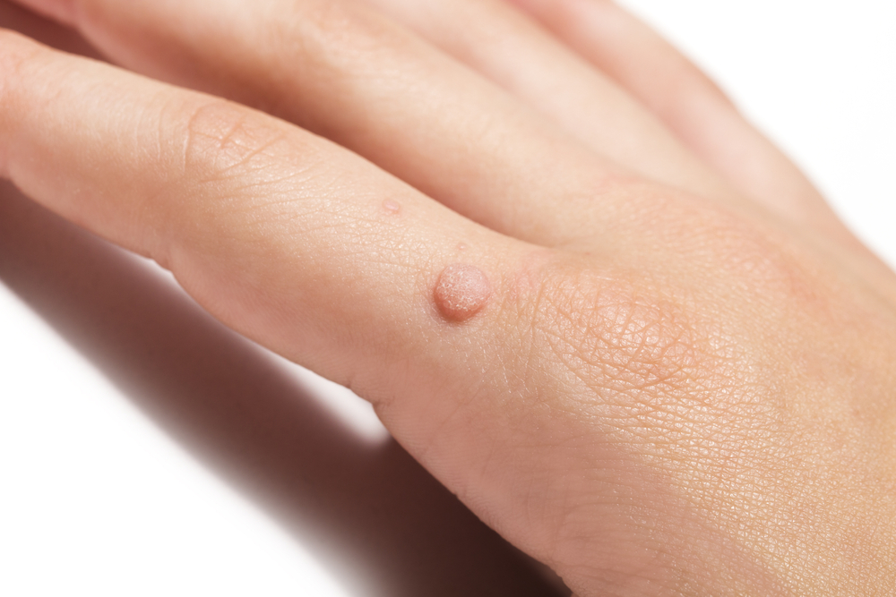 wart removal london