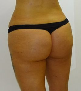 buttock fat transfer after