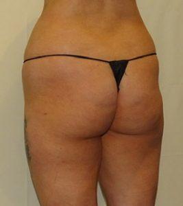 buttock fat transfer before