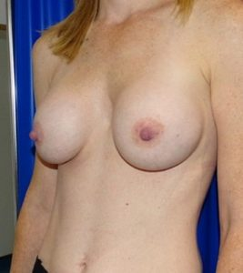 breast augmentation london after