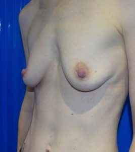 breast augmentation london before