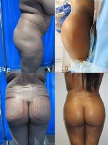 Lipo before and after examples
