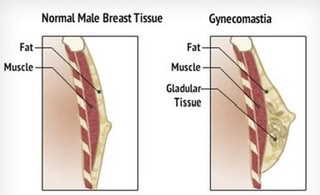 London Gynecomastia
