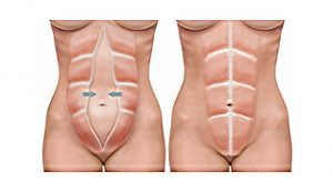 Abdominoplasty London