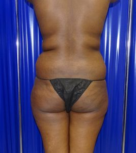 flank liposuction before