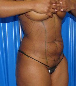 abdominal liposuction before