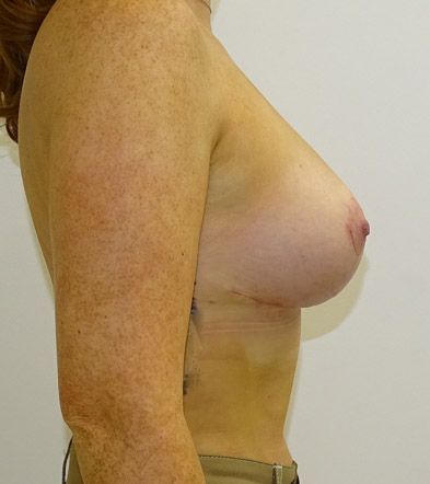 breast lift with implants after side view