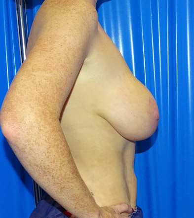 breast lift with implants before side view