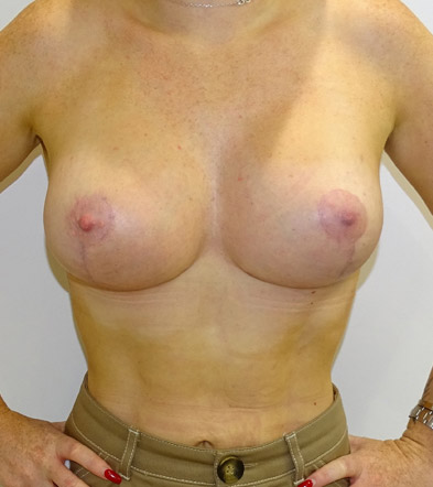 breast lift with implants after frontal view