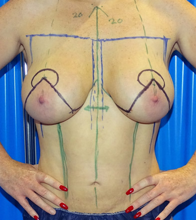 breast lift with implants before frontal view