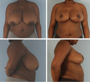 London Breast Reduction Surgery Before & After