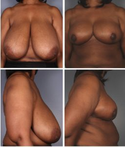 Breast Reduction Before & After