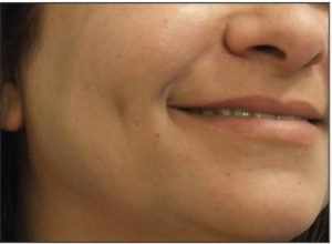 dimple creation surgery after