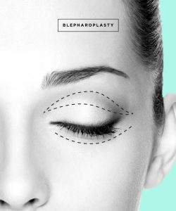 Bllepharoplasty London