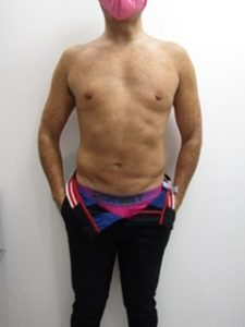 liposuction abdomen in male after