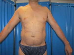 liposuction abdomen in male before