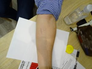 lipoma removal arm after